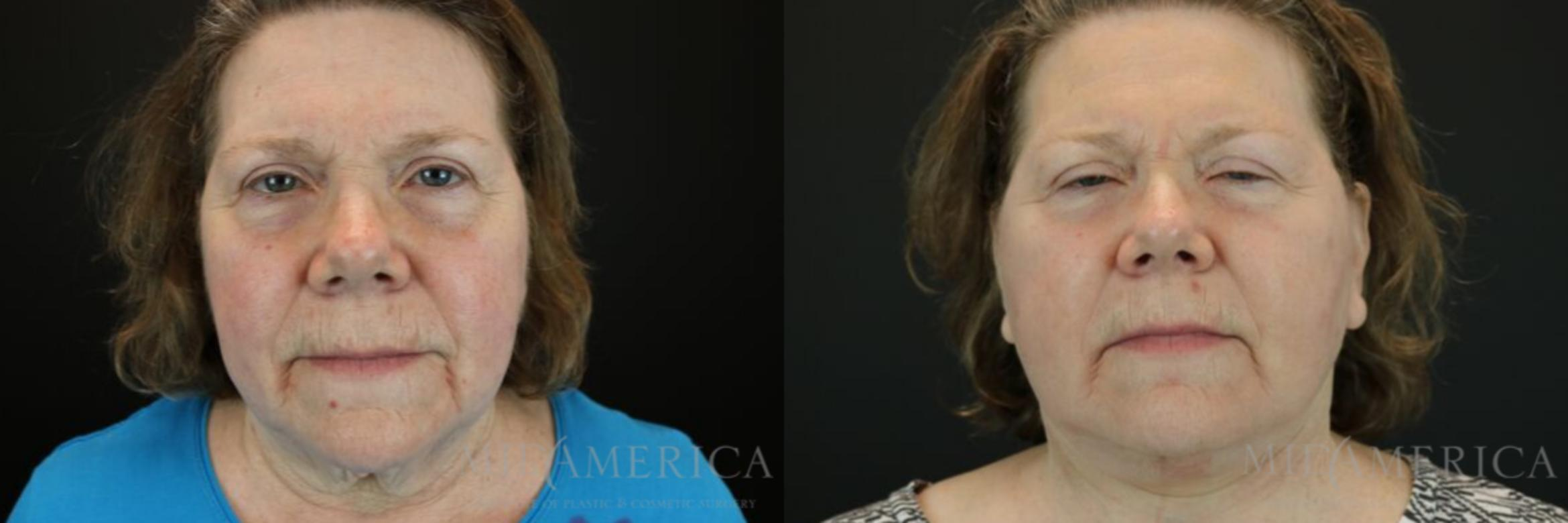 Facelift Case 109 Before & After View #1 | Glen Carbon, IL | MidAmerica Plastic Surgery