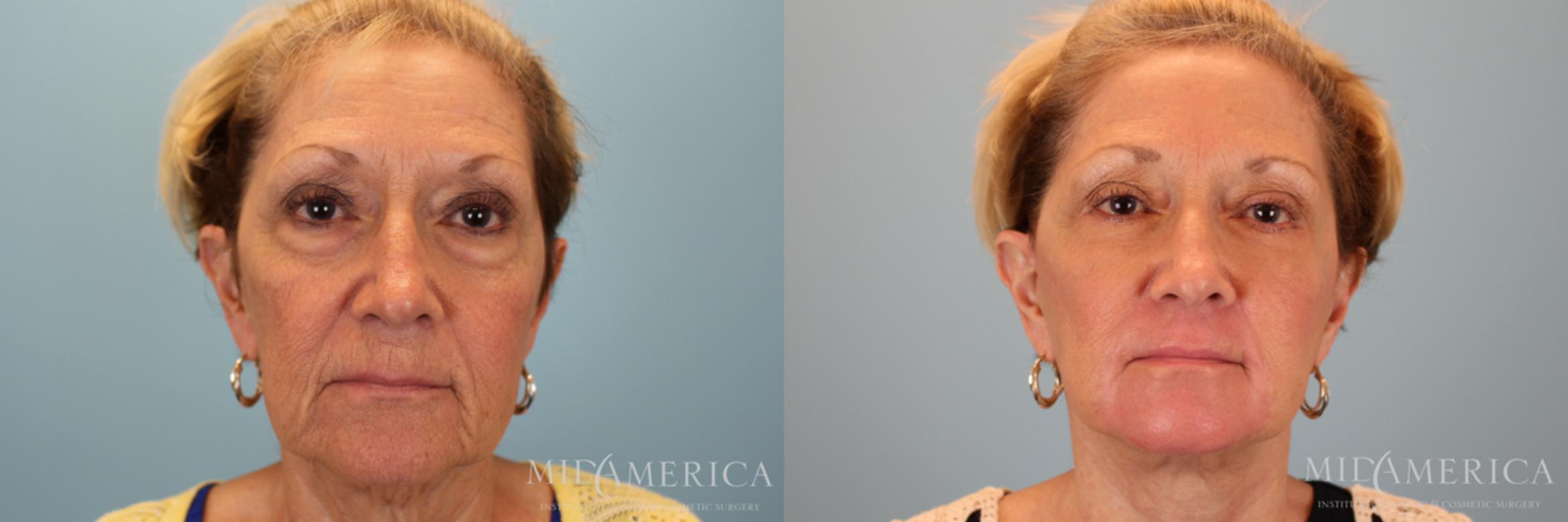 Facelift Case 30 Before & After View #1 | Glen Carbon, IL | MidAmerica Plastic Surgery